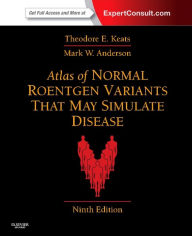 Atlas of Normal Roentgen Variants That May Simulate Disease: Expert Consult - Enhanced Online Features and Print - Theodore E. Keats