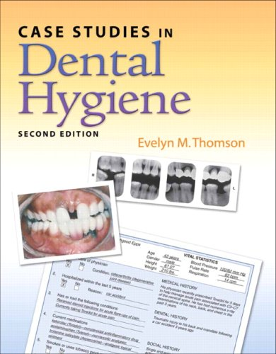 Case Studies in Dental Hygiene (2nd Edition) - Evelyn Thomson