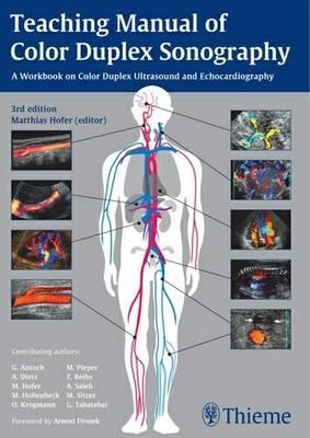 Teaching manual of color duplex sonography