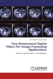 Two-dimensional Digital Filters For Image Processing Applications - Muhammad Tariqus Salam